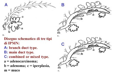 Neoplasie Papillari Mucinose Intraduttali